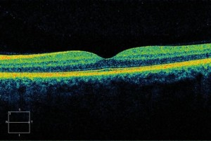 normal eye oct scan